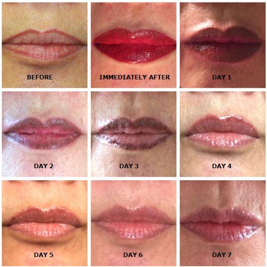 Permanent Lip Color Healing Process